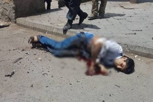 kabul suicide bomber 2 300x201 - Only suicide bomber critically wounded in today's incident in Kabul: Stanikzai