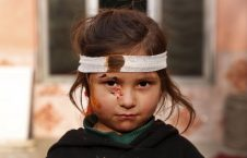 5003 226x145 - An Afghani Injured Girl