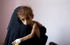 181025 yemen famine mc 1048 1ddb6f0689f1ae0f0d8c904ae79e5233 226x145 - Khashoggi Versus 50,000 Slaughtered Yemeni Children