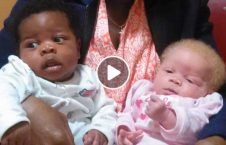 moms twins have 2 different skin colors 226x145 - Mom's twins have 2 different skin colors