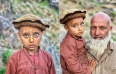 Afghan Child With Unique Eye