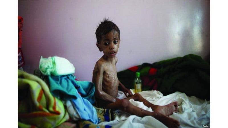په یمن کی د۴۸زرو اُمیندوارومیرمنودژوند له ژغورنی لپاره