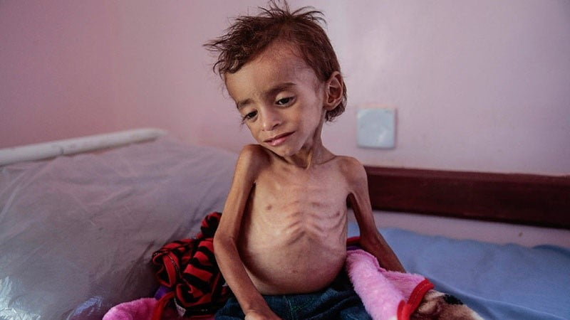 د یمن دجنګ اصلی قربانیان