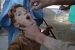 اطفال 3 150x100 - کاهش میزان واقعات پولیو در افغانستان