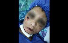 شکنجه 226x145 - شکنجه شدن یک زن توسط شوهرش در ولایت تخار