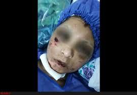 شکنجه - شکنجه شدن یک زن توسط شوهرش در ولایت تخار