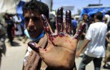 یمن 226x145 - سعودی ها درحال کوبیدن بر طبل رسوایی امریکا!