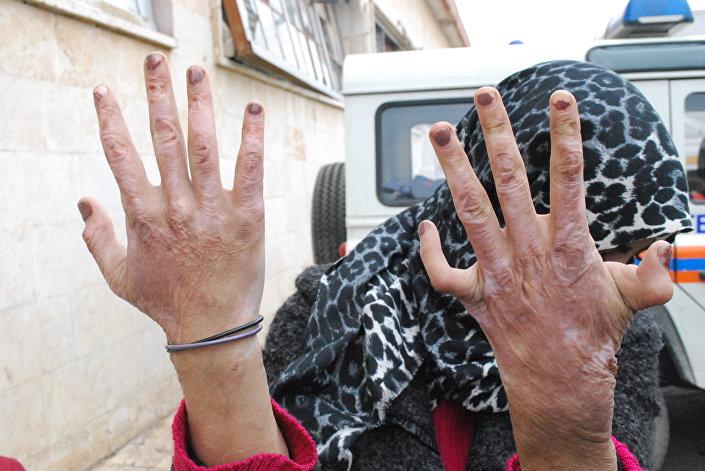 زن سوری 2 - جنایات تروریست ها درحلب افشا شد+عکس