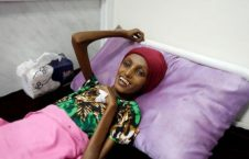 یمنی 226x145 - سوء تغذیه شدید دختر 18 ساله یمنی پس از جنایات عربستان