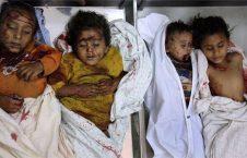 فاجعه طفل کشی یمن
