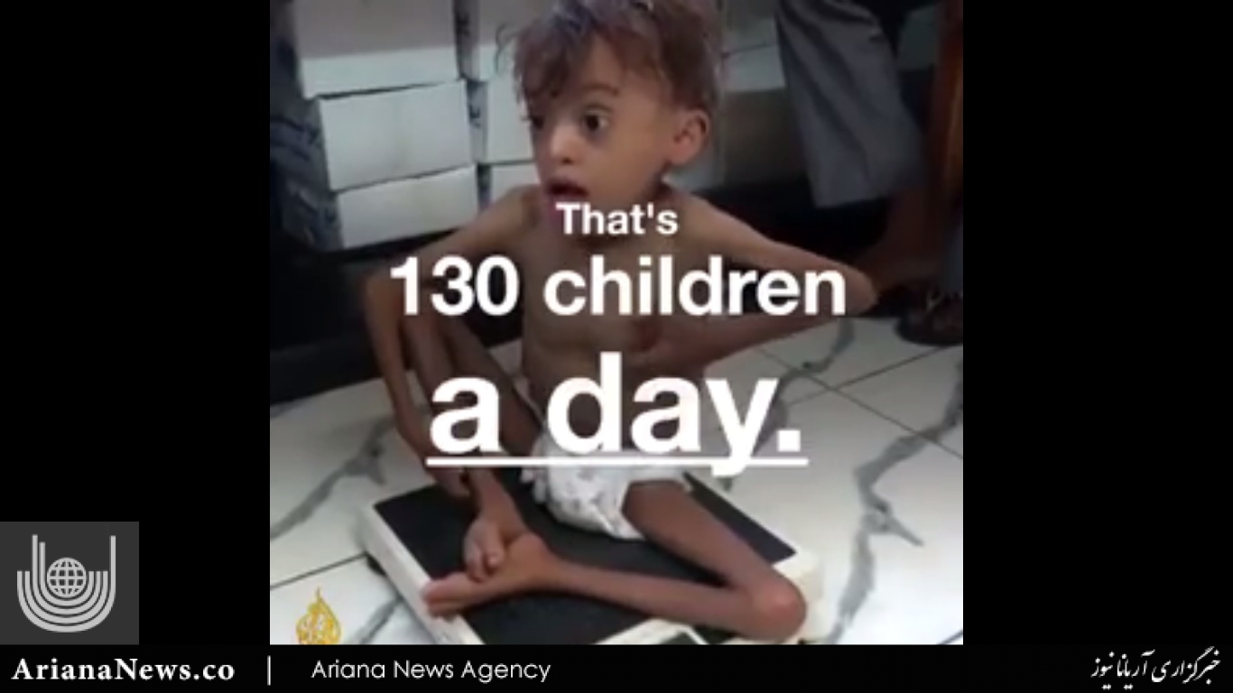 قحطی یمن