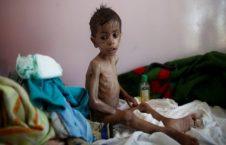 وبا 226x145 - خطر وبا در کمین یمنیها