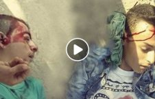 ویدیو جان باختن نوجوان فلسطینی 18 226x145 - ویدیو/ لحظه جان باختن مظلومانه دو نوجوان فلسطینی (18+)