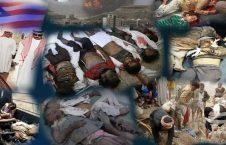 یمن 4 226x145 - جنایت نسل کشی آل سعود در یمن