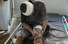 یمن 4 226x145 - آمار قربانیان تجاوز وحشیانه طیارات سعودی به الحدیده