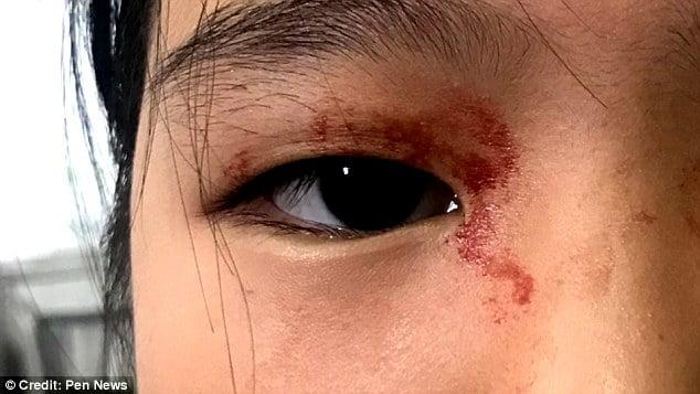 خون 1 - عرق خون بر پیشانی یک دختر! + تصاویر
