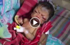 ویدیو نوزاد عجیب الخلقه بنگله دیش 226x145 - ویدیو/ ولادت نوزادی عجیب الخلقه در بنگله دیش!