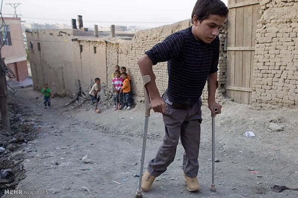 پولیو - پولیو؛ در کمین اطفال افغانستان
