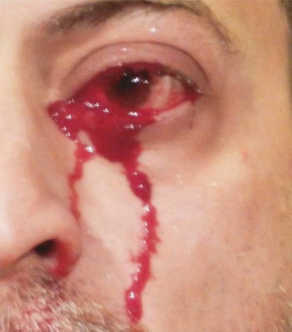 گریه - این مرد ایتالیایی خون می گرید! + عکس