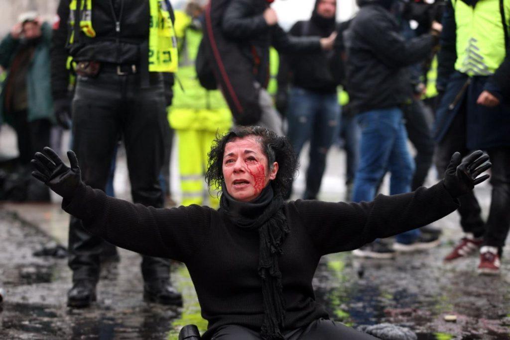 زن فرانسه 1024x684 - تصویر/ لت و کوب یک زن توسط پولیس فرانسه