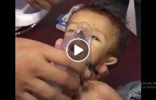 ویدیو صحنه دردناک یمن 226x145 - ویدیو/ صحنه هایی دردناک از یمن (18+)