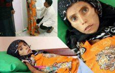 فاطمه ابراهیم هادی  226x145 - تصویر/ دختری که تنها پوست و استخوان است!