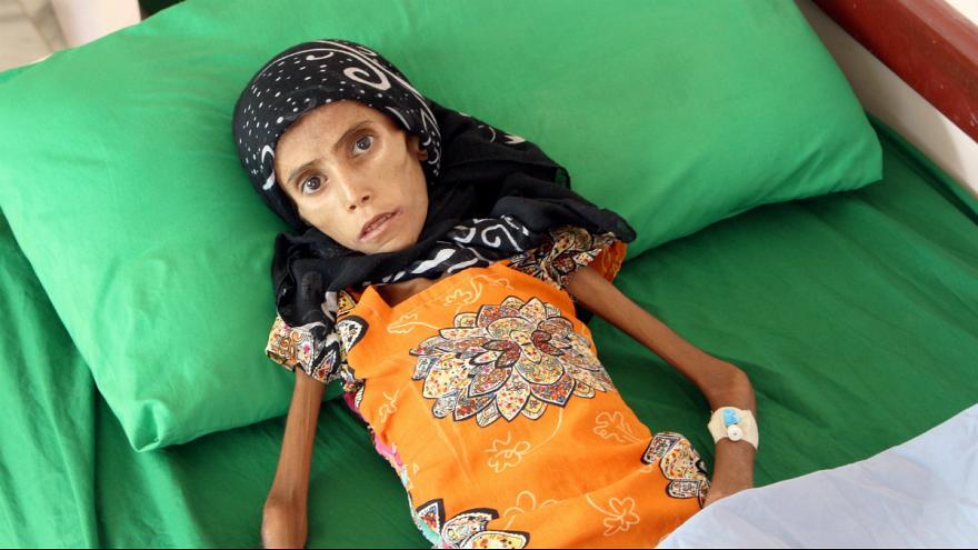 فاطمه ابراهیم هادی 1 - تصویر/ دختری که تنها پوست و استخوان است!