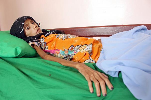 فاطمه ابراهیم هادی 2 - تصویر/ دختری که تنها پوست و استخوان است!