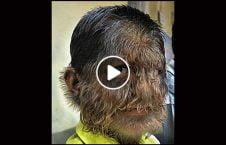 ویدیو پیدایش انسان گرگ نما هند 226x145 - ویدیو/ پیدایش انسان گرگ نما در هند