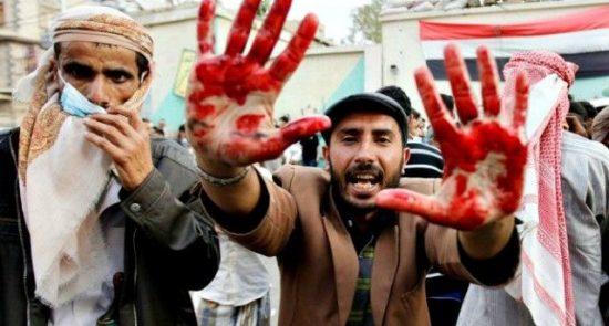 جنگ يمن 550x295 - تهديد بلوچها به كناره گيری از جنگ يمن