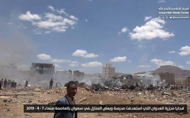 صنعا1 - قتل عام اطفال در صنعا + تصاویر (18+)