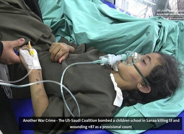 صنعا10 - قتل عام اطفال در صنعا + تصاویر (18+)