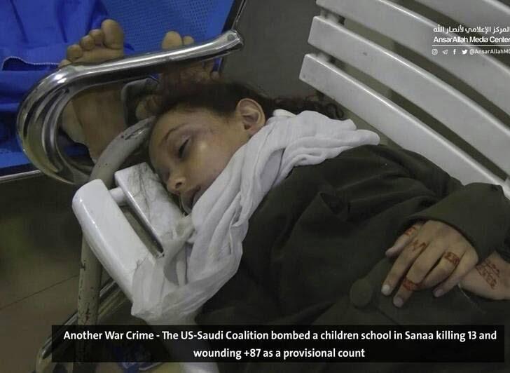 صنعا11 - قتل عام اطفال در صنعا + تصاویر (18+)