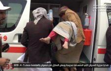 صنعا2 226x145 - قتل عام اطفال در صنعا + تصاویر (18+)