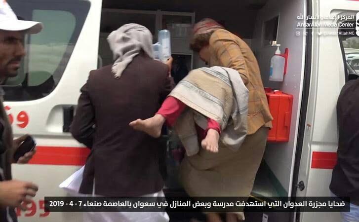صنعا2 - قتل عام اطفال در صنعا + تصاویر (18+)