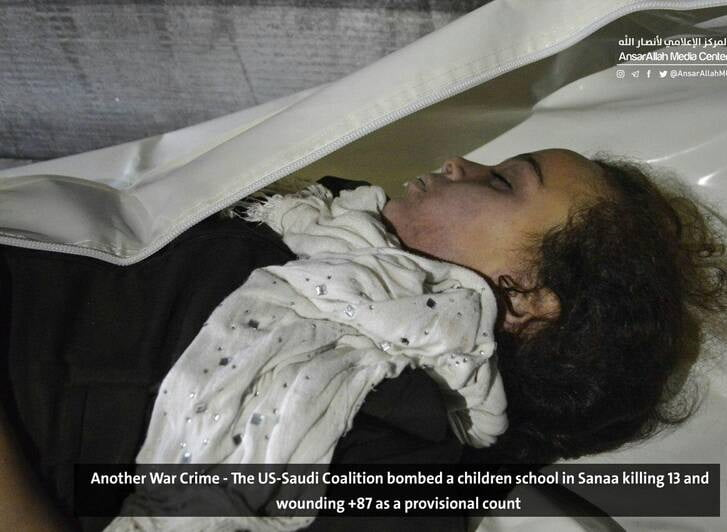 صنعا4 - قتل عام اطفال در صنعا + تصاویر (18+)