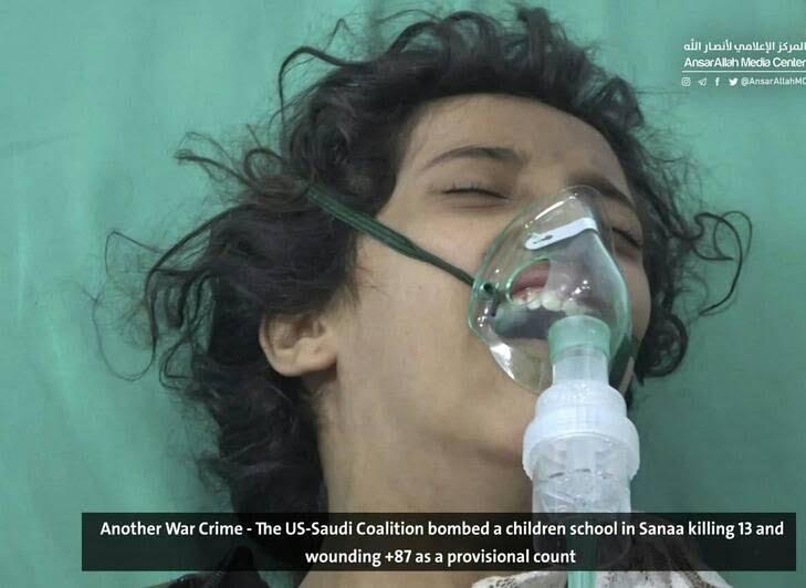صنعا5 - قتل عام اطفال در صنعا + تصاویر (18+)