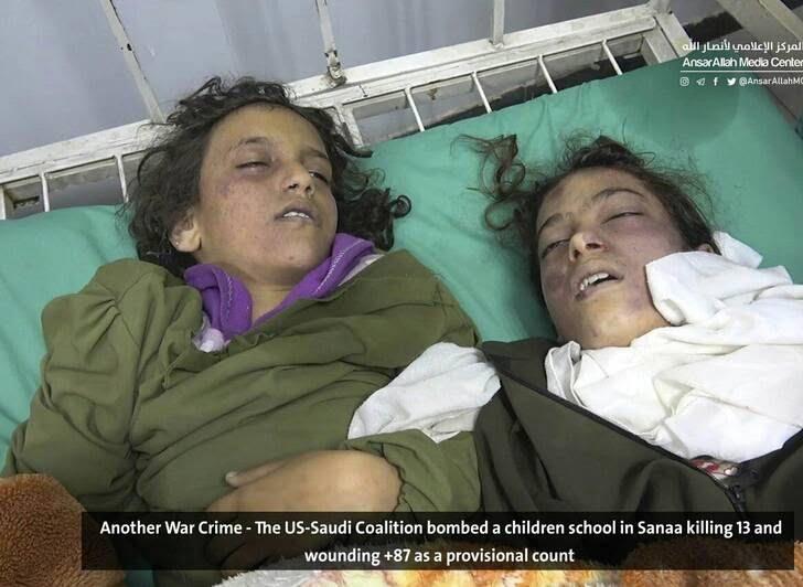 صنعا6 - قتل عام اطفال در صنعا + تصاویر (18+)
