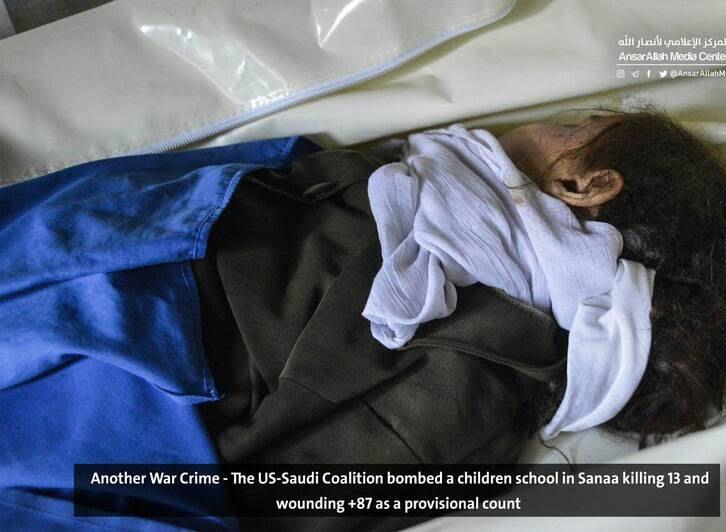 صنعا7 - قتل عام اطفال در صنعا + تصاویر (18+)
