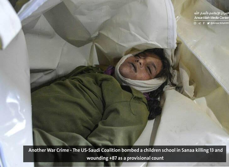 صنعا9 - قتل عام اطفال در صنعا + تصاویر (18+)
