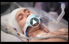 ویدیو کما محصل جوان مشت سارق 226x145 - ویدیو/ به کما رفتن محصل جوان بر اثر مشت سارق