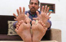 پُرانگشت 1 226x145 - تصاویر/ پُرانگشت ترین مرد جهان