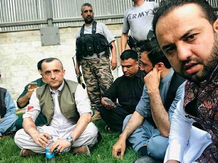امرالله صالح2 - تصاویر/ امرالله صالح پس از زخم برداشتن در انفجار کابل