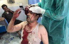 زخمی 226x145 - مذاکرات امریکا و طالبان در ساحل دریای خون مردم افغانستان