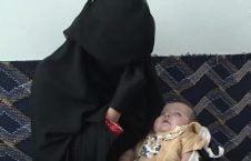 نوزاد یمن2 226x145 - قربانی شدن یک نوزاد درمحاصره میدان هوایی یمن