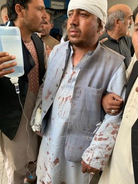 انفجار کابل زخمی 2 - انفجار در نزدیکی پل سوخته شهر کابل به روایت تصاویر