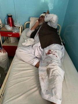 انفجار کابل زخمی 3 - انفجار در نزدیکی پل سوخته شهر کابل به روایت تصاویر