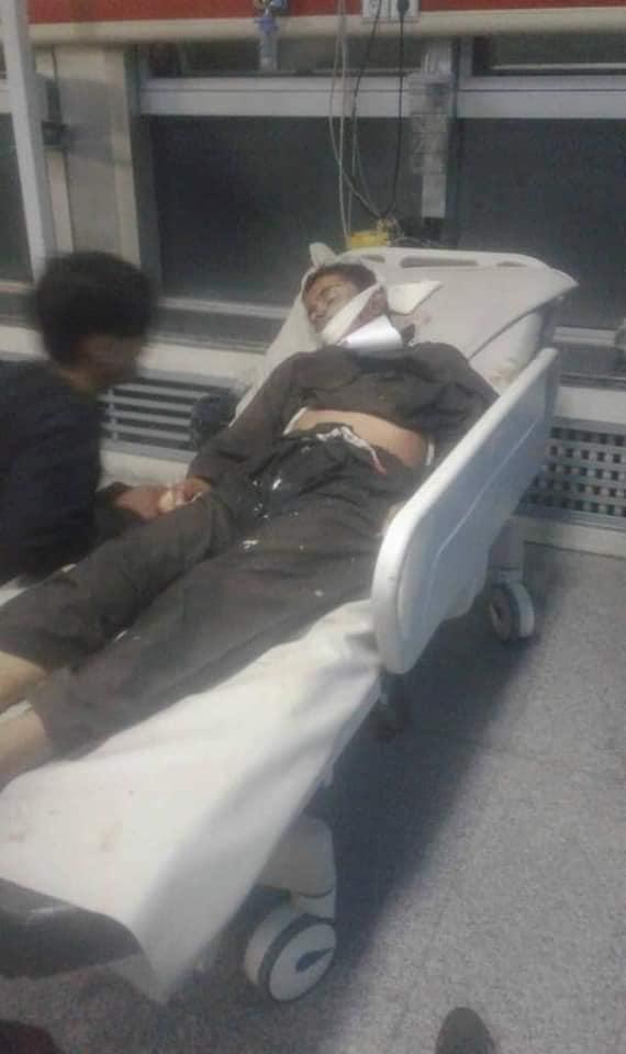 انفجار کابل4 - تصاویر/ انفجار خونین در هوتل شهر دوبی کابل