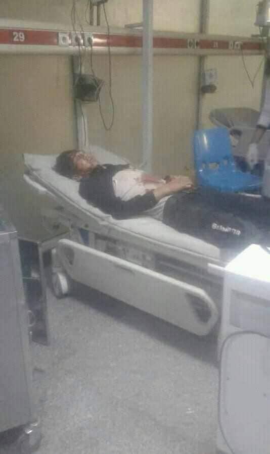 انفجار کابل5 - تصاویر/ انفجار خونین در هوتل شهر دوبی کابل
