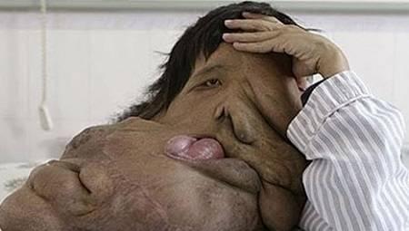 هوآنگ چونجای 1 - زشت ترین مرد جهان + تصاویر(18+)